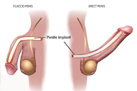 semi-rigid-penile-implant-info-top-nyc-specialist-02